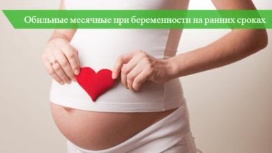 обильные месячные при беременности