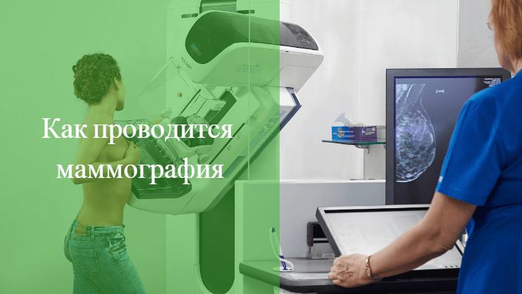 когда можно делать маммографию после месячных