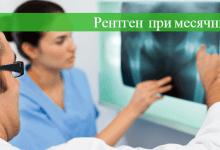 можно ли при месячных делать рентген