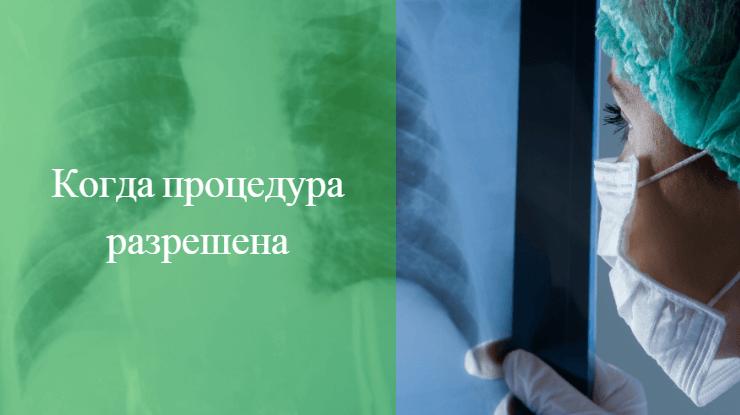 рентген во время месячных