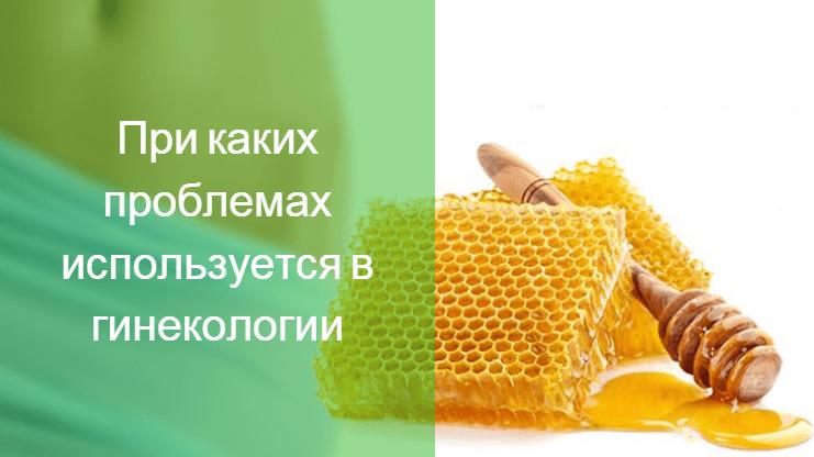 тампоны с алоэ и медом